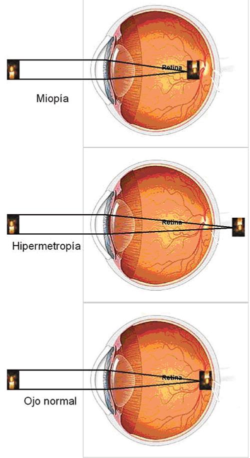 ojo-2